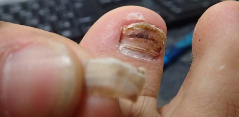 爪 内出血 剥がれる 【体験談】爪の内出血が消えない!いつ治る?いつまで黒い?