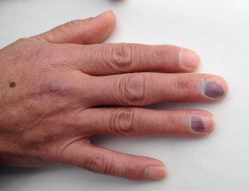 腫れる指.jpg